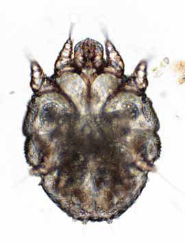 Sarcoptesscabie under a microscope